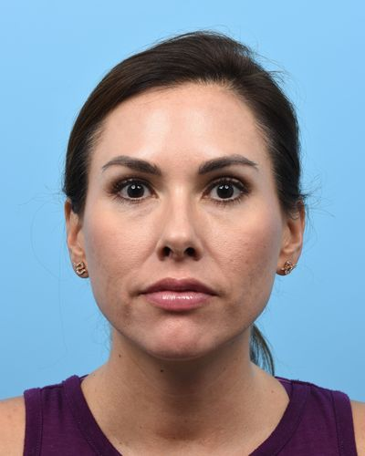"2 weeks following 45 Units to the forehead, glabella, and crows feet. Note subtle ""botox lift"" of the lateral eyebrows."