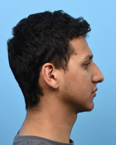 Pre-op male patient with dorsal hump and ptotic nasal tip