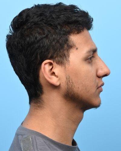 2 mos post-op demonstrating improved dorsal nasal aesthetic line and tip position