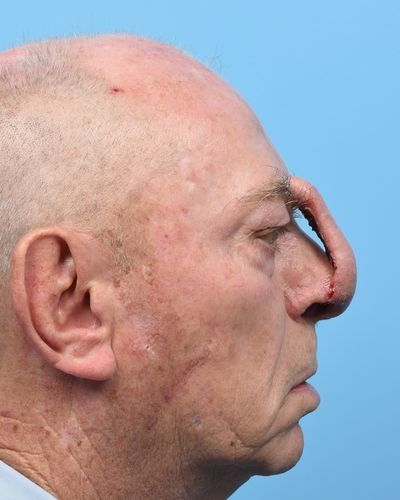 Lateral view of paramedian forehead flap