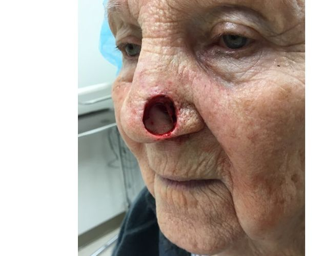 Patient with full thickness nasal ala defect following Moh's surgery for skin cancer