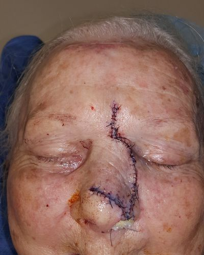 Dorsal nasal flap performed for external skin coverage as patient requested a single stage procedure