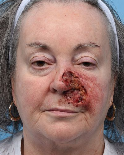 Large composite defect post Moh's surgery involving left full thickness nasal ala, left medial cheek, and left upper lip due to basal cell carcinoma