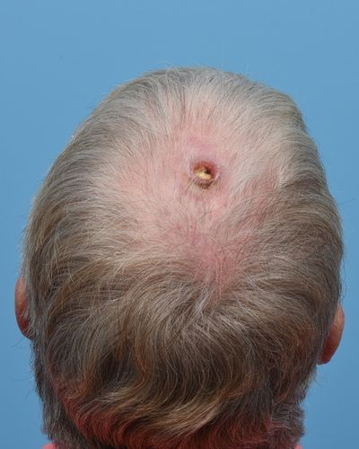 Pre-operative Squamous Cell Carcinoma of the Scalp