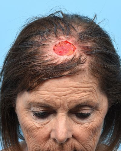 Midline scalp defect following Moh's micrographic surgery