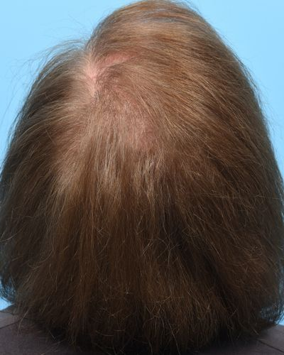 6 weeks following hair preservation scalp repair