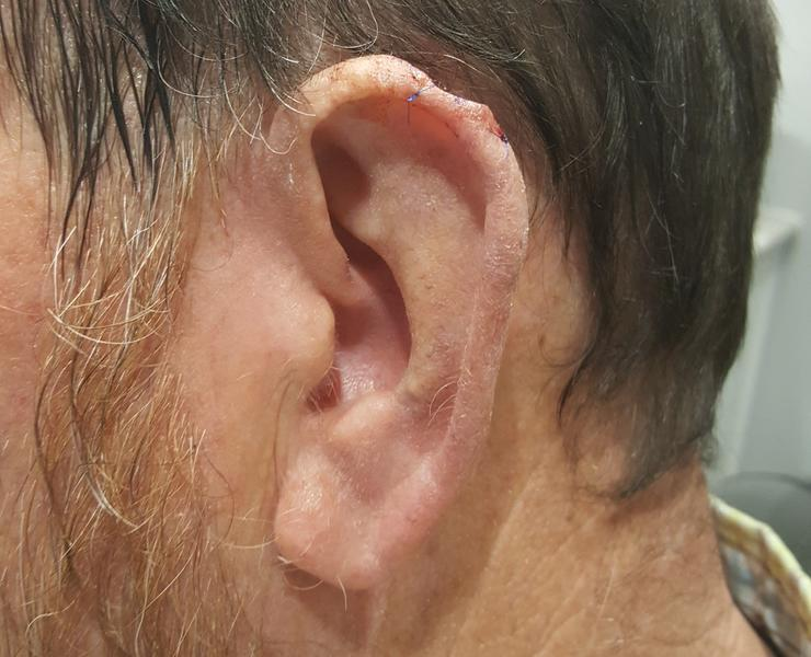 Pre ear skin cancer reconstruction