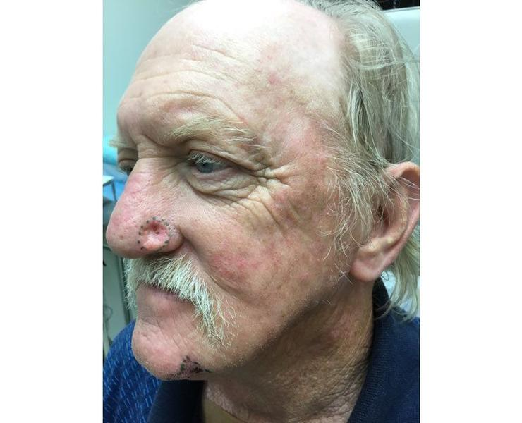 Preop Left nose and chin lesion