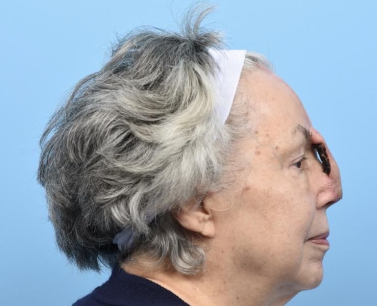 Forehead flap - 3 weeks post op