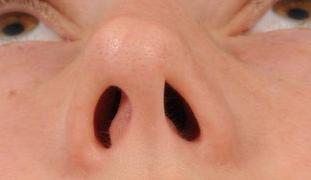 External Nasal Valve