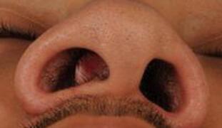 Anatomic nasal obstruction symptoms