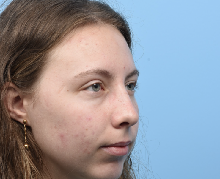 1 month post rhinoplasty and chin implant