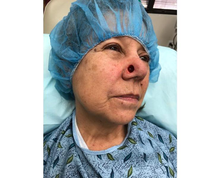 Post Mohs skin cancer surgery