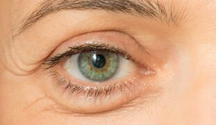 Address the Brow and Upper Eyelid