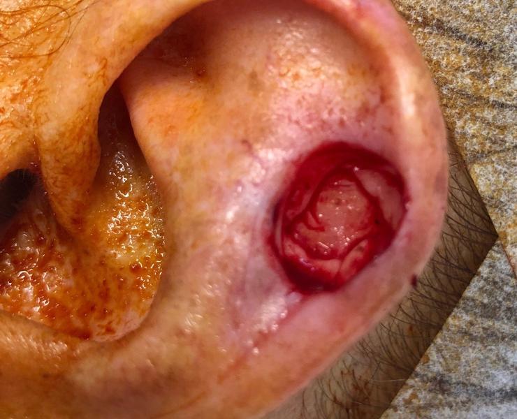Cartilage defect