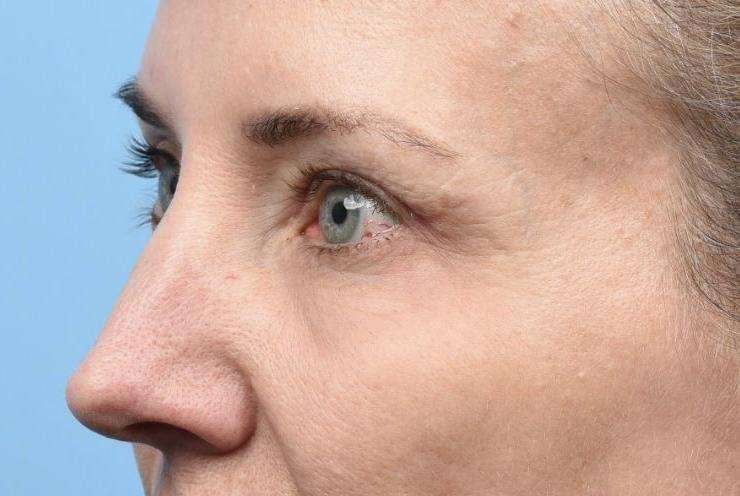 2.5 months post Upper Blepharoplasty with TCA Peel