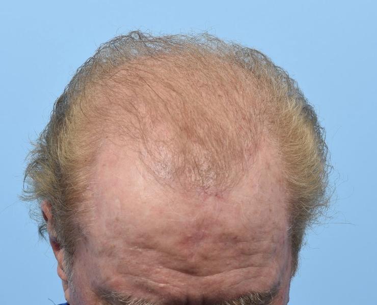 Post FUT Hair Transplant/PRP
