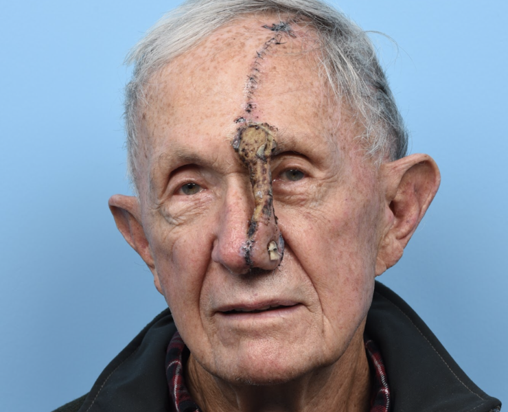 Forehead flap - 10 days post op