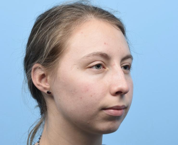 Pre Rhinoplasty and Chin Implant
