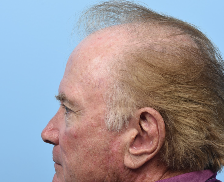 Pre FUT Hair Transplant/PRP