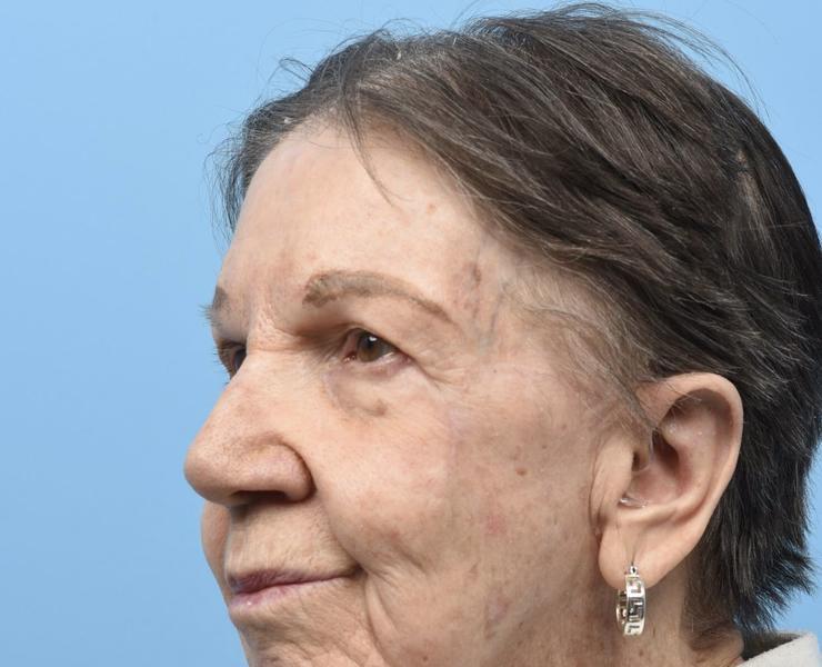 5 1/2 months post Complex Facial Reconstruction Oblique View