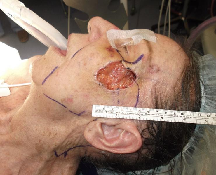 Intraop Complex Facial Reconstruction