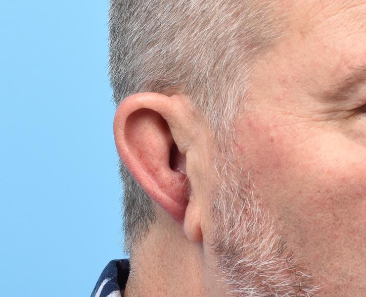 Contracted Ear PreOp