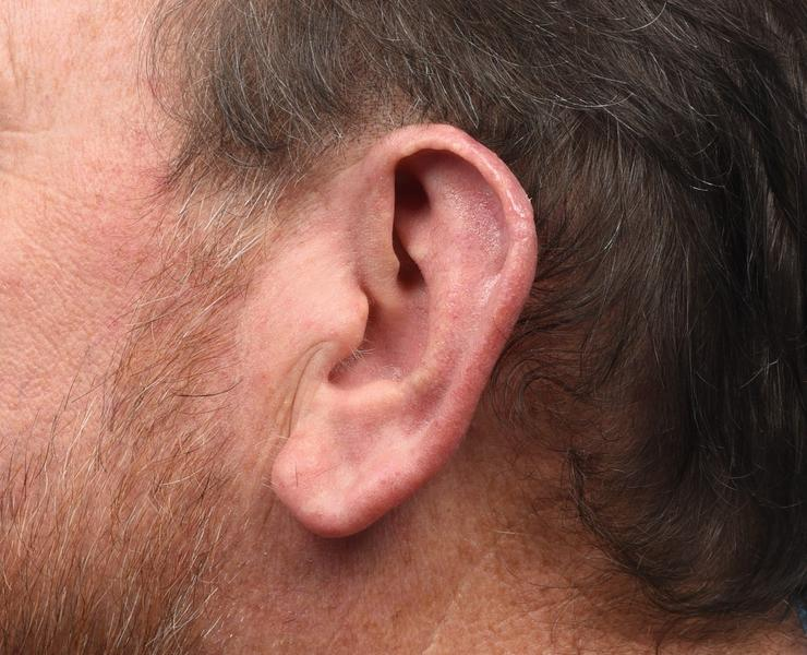 5 weeks post op ear reconstruction