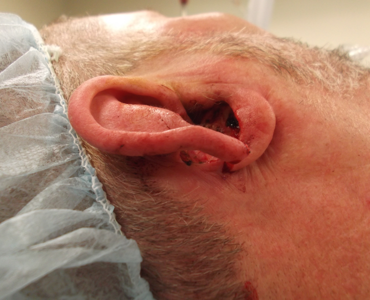 Complex Full Thickness Ear Defect