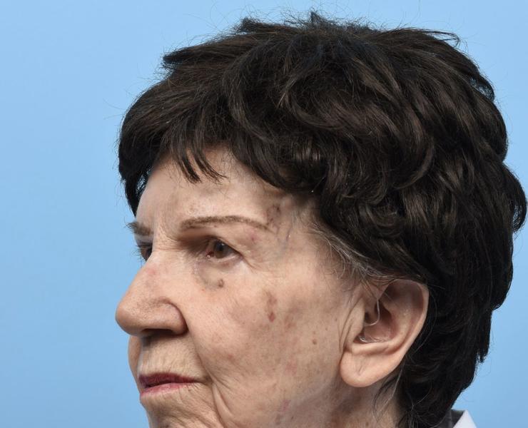 Pre Complex Facial Reconstruction Oblique View