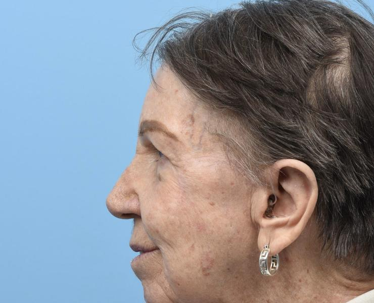 5 1/2 months post Complex Facial Reconstruction Lateral View